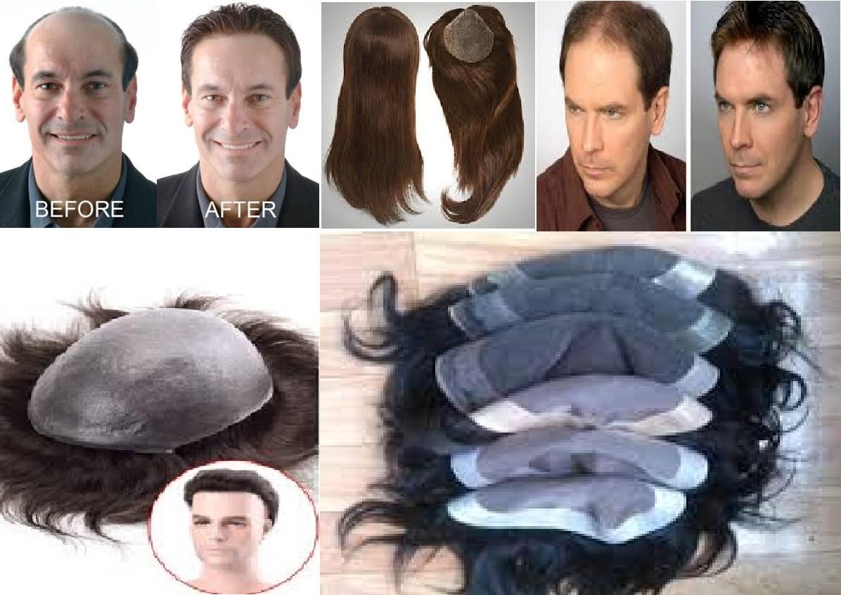 Mohan Hair 8130039632 Hair Bonding Laxmi Nagar Delhi Hair Weaving